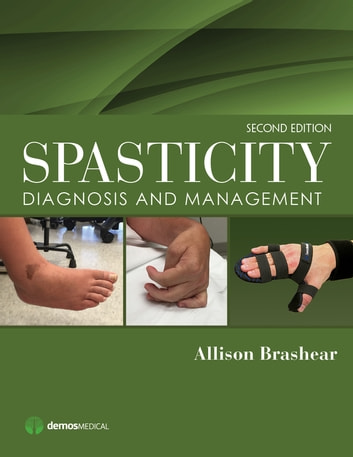 spasticity diagnosis and management free ebook